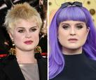 Celebrity po 10 rokoch___