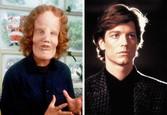 """Eric Stoltz ako Roy L. """"Rocky"""" Dennis v snímkeMask"""